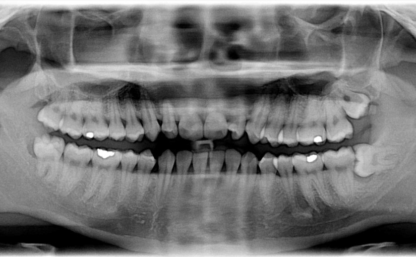 What to Expect When Getting your Wisdom Teeth Removed